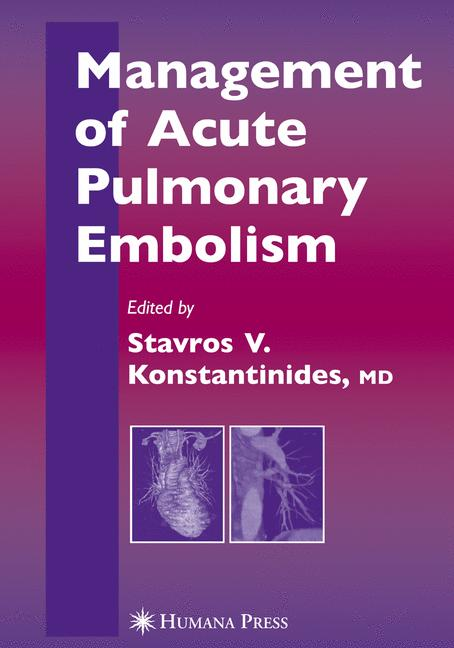 Management of Accute Pulmonary Embolism By Konstantinides, Stavros V., M.D. (EDT)/ Goldhaber, Samuel Z. (FRW)